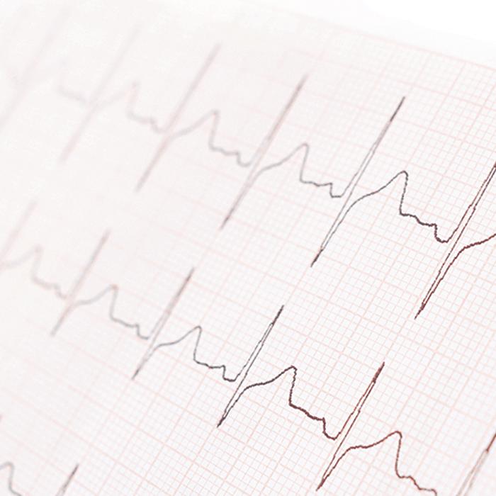 Ausschläge eines EKGs in der Praxis für Kardiologie Dr. Lachmann in Bayreuth